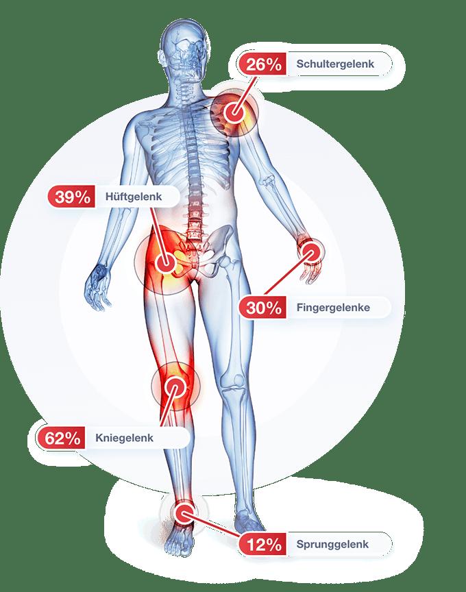 von Arthrose betroffenen Gelenke